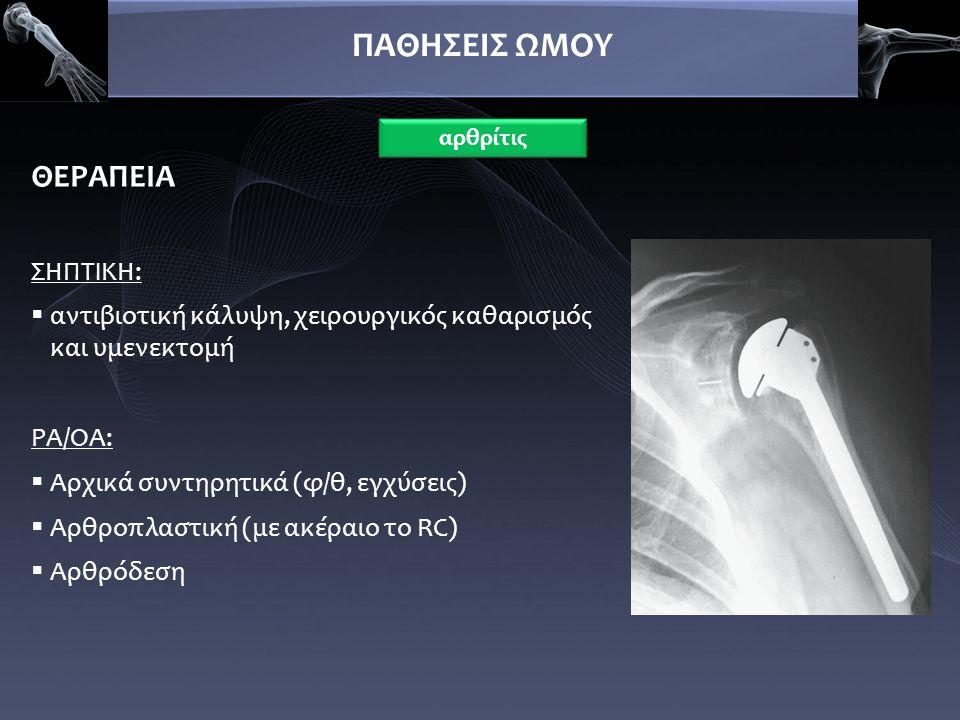 ΠΑΘΗΣΕΙΣ ΩΜΟΥ ΘΕΡΑΠΕΙΑ ΣΗΠΤΙΚΗ:  αντιβιοτική κάλυψη, χειρουργικός καθαρισμός και υμενεκτομή ΡΑ/ΟΑ:  Αρχικά συντηρητικά (φ/θ, εγχύσεις)  Αρθροπλαστι