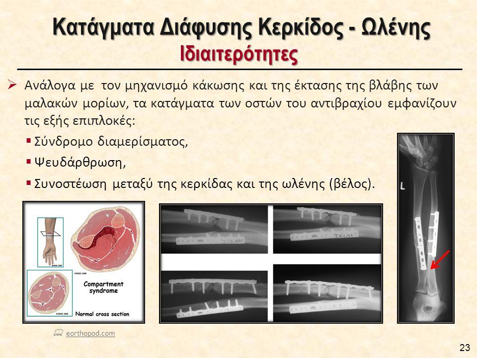 Κατάγματα Διάφυσης Κερκίδος - Ωλένης Ιδιαιτερότητες Κατάγματα Διάφυσης Κερκίδος - Ωλένης Ιδιαιτερότητες  Ανάλογα με τον μηχανισμό κάκωσης και της έκτασης της βλάβης των μαλακών μορίων, τα κατάγματα των οστών του αντιβραχίου εμφανίζουν τις εξής επιπλοκές:  Σύνδρομο διαμερίσματος,  Ψευδάρθρωση,  Συνοστέωση μεταξύ της κερκίδας και της ωλένης (βέλος).