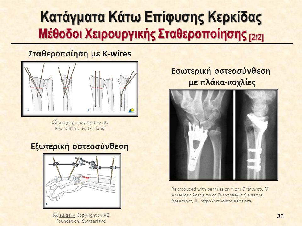 Κατάγματα Κάτω Επίφυσης Κερκίδας Μέθοδοι Χειρουργικής Σταθεροποίησης [2/2] 33 Σταθεροποίηση με K-wires Εσωτερική οστεοσύνθεση με πλάκα-κοχλίες Εξωτερι