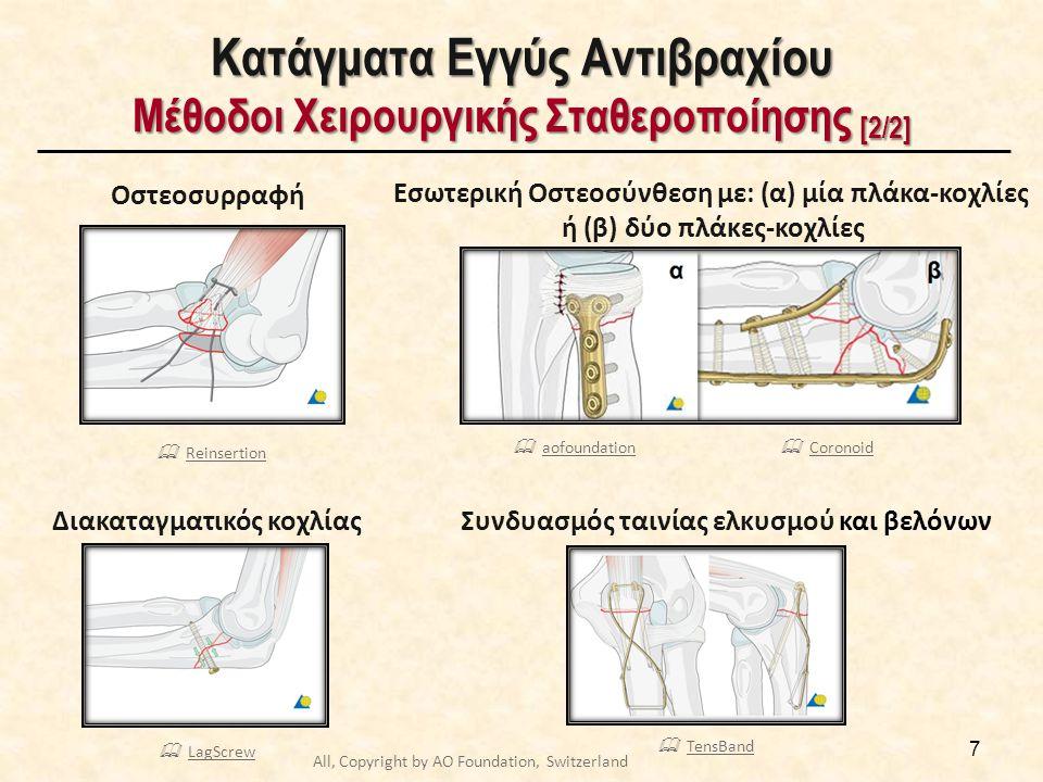 Κατάγματα Εγγύς Αντιβραχίου Μέθοδοι Χειρουργικής Σταθεροποίησης [2/2] 7 Οστεοσυρραφή Διακαταγματικός κοχλίας Εσωτερική Οστεοσύνθεση με: (α) μία πλάκα-κοχλίες ή (β) δύο πλάκες-κοχλίες Συνδυασμός ταινίας ελκυσμού και βελόνων  ReinsertionReinsertion  LagScrewLagScrew  TensBandTensBand  CoronoidCoronoid  aofoundationaofoundation All, Copyright by AO Foundation, Switzerland