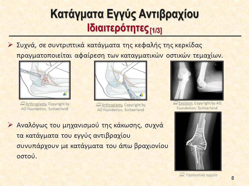 Κατάγματα Εγγύς Αντιβραχίου Ιδιαιτερότητες [2/3] 9  Λόγω της σύνθετης ανατομίας της περιοχής του αγκώνα, η λειτουργική αποκατάσταση των καταγμάτων του εγγύς αντιβραχίου δεν είναι πάντα άριστη.