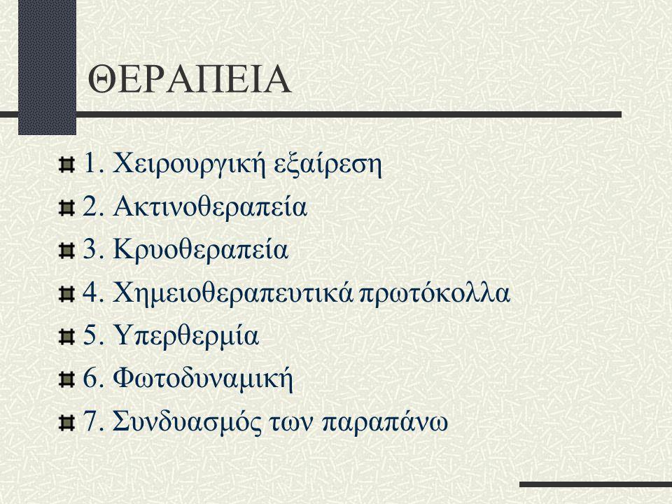 ΘΕΡΑΠΕΙΑ 1. Χειρουργική εξαίρεση 2. Ακτινοθεραπεία 3. Κρυοθεραπεία 4. Χημειοθεραπευτικά πρωτόκολλα 5. Υπερθερμία 6. Φωτοδυναμική 7. Συνδυασμός των παρ