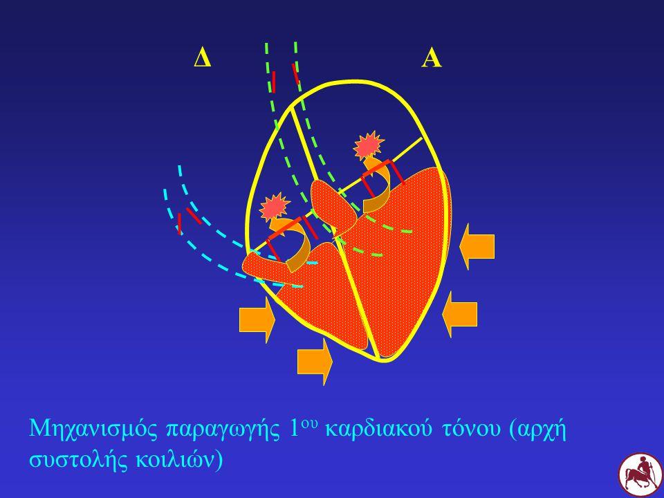 Μηχανισμός παραγωγής 1 ου καρδιακού τόνου (αρχή συστολής κοιλιών) Δ Α