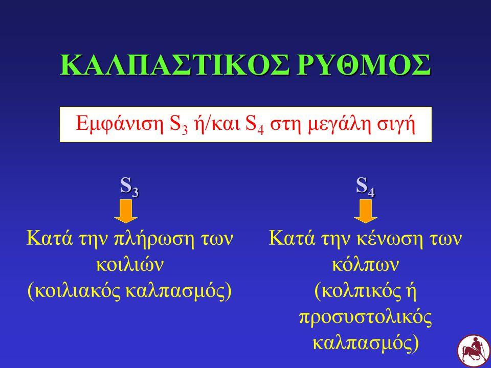 ΚΑΛΠΑΣΤΙΚΟΣ ΡΥΘΜΟΣ Εμφάνιση S 3 ή/και S 4 στη μεγάλη σιγή S 4 Κατά την κένωση των κόλπων (κολπικός ή προσυστολικός καλπασμός) S 3 Κατά την πλήρωση των κοιλιών (κοιλιακός καλπασμός)