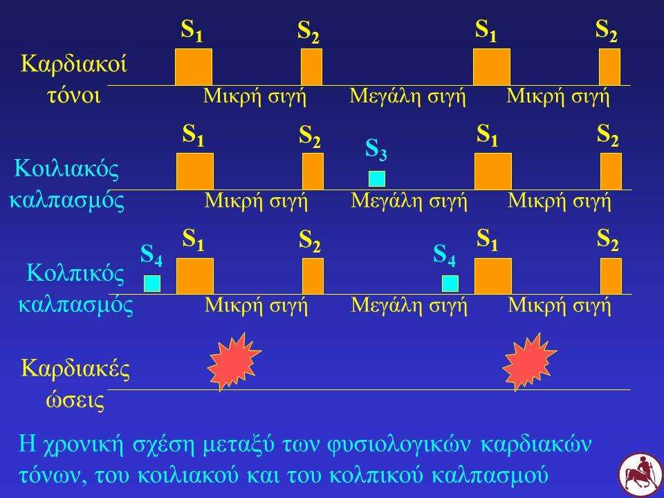 Η χρονική σχέση μεταξύ των φυσιολογικών καρδιακών τόνων, του κοιλιακού και του κολπικού καλπασμού Καρδιακοί τόνοι Καρδιακές ώσεις S1S1 S2S2 S1S1 S2S2 Μικρή σιγήΜεγάλη σιγήΜικρή σιγή Κοιλιακός καλπασμός S1S1 S2S2 S1S1 S2S2 Μικρή σιγήΜεγάλη σιγήΜικρή σιγή Κολπικός καλπασμός S1S1 S2S2 S1S1 S2S2 Μικρή σιγήΜεγάλη σιγήΜικρή σιγή S3S3 S4S4 S4S4