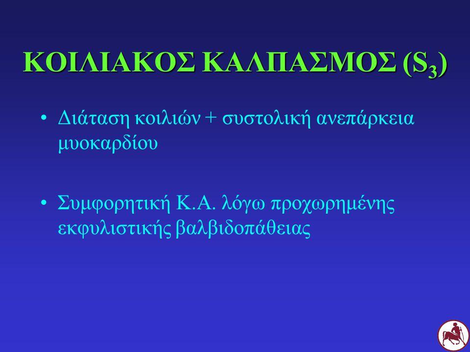 ΚΟΙΛΙΑΚΟΣ ΚΑΛΠΑΣΜΟΣ (S 3 ) Διάταση κοιλιών + συστολική ανεπάρκεια μυοκαρδίου Συμφορητική Κ.Α.