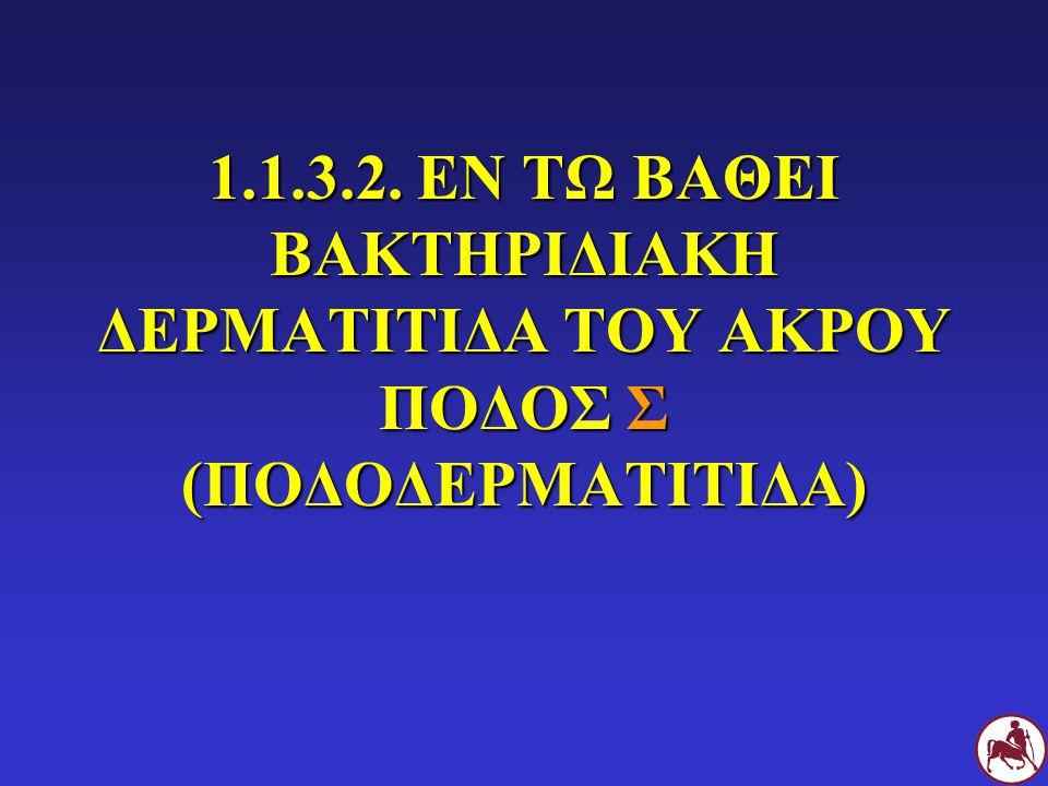 1.1.3.2. ΕΝ ΤΩ ΒΑΘΕΙ ΒΑΚΤΗΡΙΔΙΑΚΗ ΔΕΡΜΑΤΙΤΙΔΑ ΤΟΥ ΑΚΡΟΥ ΠΟΔΟΣ Σ (ΠΟΔΟΔΕΡΜΑΤΙΤΙΔΑ)