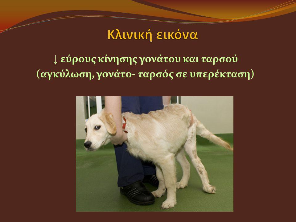 ↓ εύρους κίνησης γονάτου και ταρσού (αγκύλωση, γονάτο- ταρσός σε υπερέκταση)