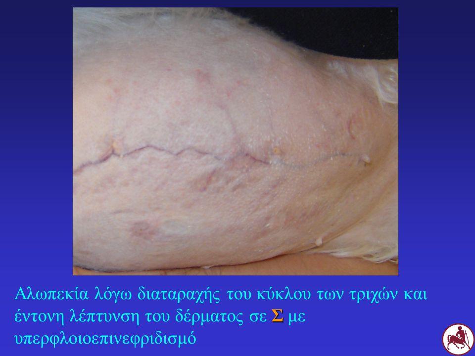 Σ Αλωπεκία λόγω διαταραχής του κύκλου των τριχών και έντονη λέπτυνση του δέρματος σε Σ με υπερφλοιοεπινεφριδισμό