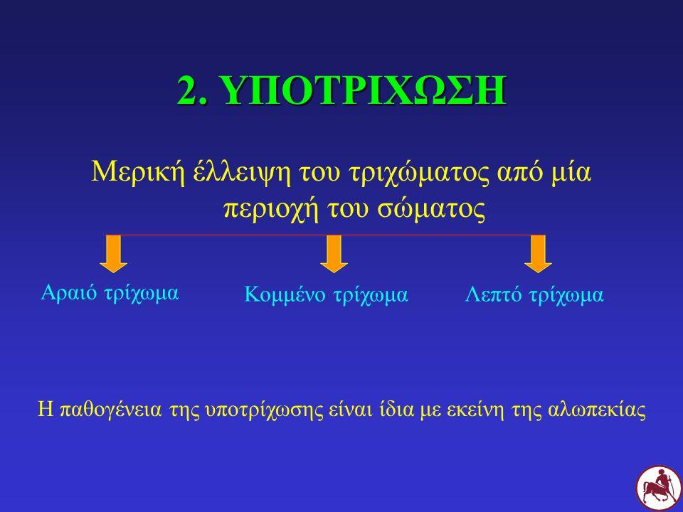 2. ΥΠΟΤΡΙΧΩΣΗ Μερική έλλειψη του τριχώματος από μία περιοχή του σώματος Αραιό τρίχωμα Λεπτό τρίχωμαΚομμένο τρίχωμα Η παθογένεια της υποτρίχωσης είναι