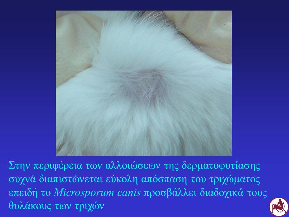 Στην περιφέρεια των αλλοιώσεων της δερματοφυτίασης συχνά διαπιστώνεται εύκολη απόσπαση του τριχώματος επειδή το Microsporum canis προσβάλλει διαδοχικά
