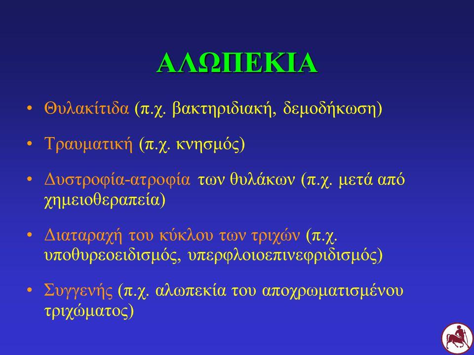 ΑΛΩΠΕΚΙΑ Θυλακίτιδα (π.χ. βακτηριδιακή, δεμοδήκωση) Τραυματική (π.χ. κνησμός) Δυστροφία-ατροφία των θυλάκων (π.χ. μετά από χημειοθεραπεία) Διαταραχή τ