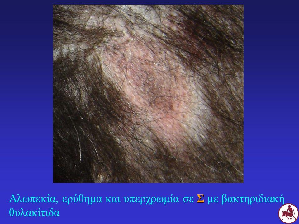 Σ Αλωπεκία, ερύθημα και υπερχρωμία σε Σ με βακτηριδιακή θυλακίτιδα