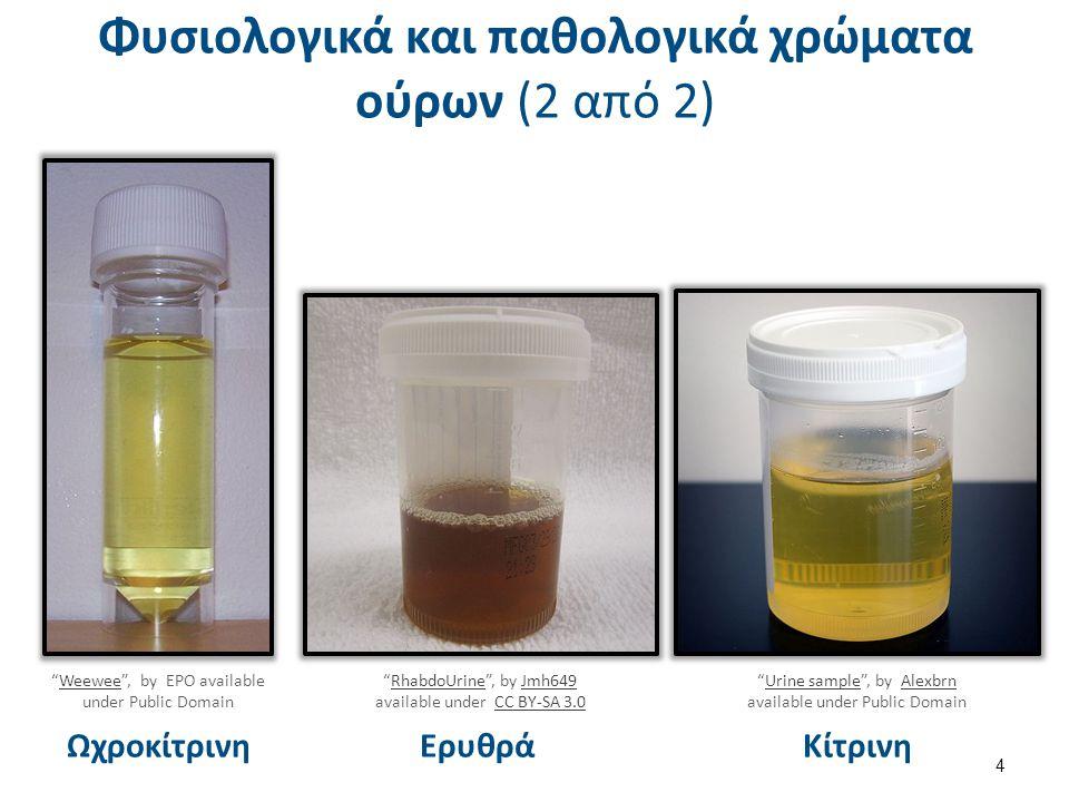 GOD Β-D-Γλυκόζη + O 2 + H 2 O ────> Γλυκονικό οξύ + H 2 O 2 POD 2H 2 O 2 + 4-ΑΑP + 1-Ναφθολ,3,6-δισουλφονικό οξύ ────> κινόνη + 4H 2 O Δεν ανιχνεύονται άλλα σάκχαρα ή αναγωγικές ουσίες Προσδιορισμός γλυκόζης με μέθοδο GOD/POD