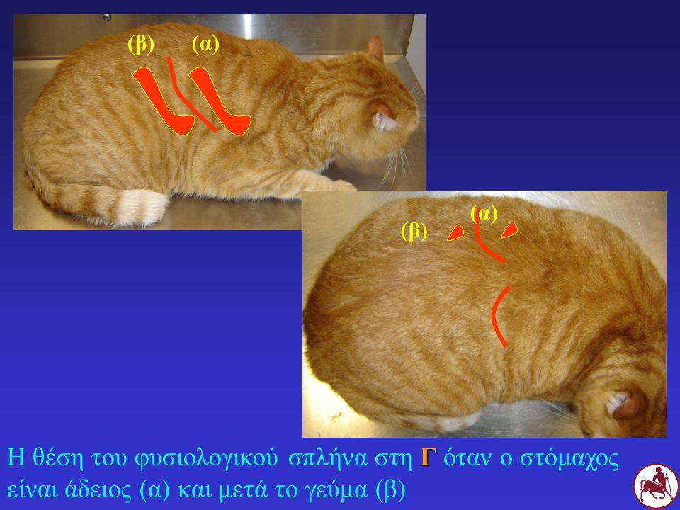 Γ Η θέση του φυσιολογικού σπλήνα στη Γ όταν ο στόμαχος είναι άδειος (α) και μετά το γεύμα (β) (α)(β) (α) (β)