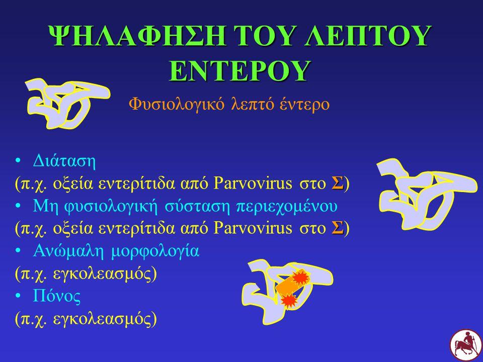 ΨΗΛΑΦΗΣΗ ΤΟΥ ΛΕΠΤΟΥ ΕΝΤΕΡΟΥ Διάταση Σ (π.χ. οξεία εντερίτιδα από Parvovirus στο Σ) Μη φυσιολογική σύσταση περιεχομένου Σ (π.χ. οξεία εντερίτιδα από Pa
