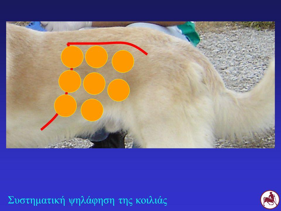 Σ Στο Σ οι φυσιολογικές έλικες του λεπτού εντέρου ψηλαφώνται στο πρόσθιο και κάτω τμήμα της κοιλιακής κοιλότητας