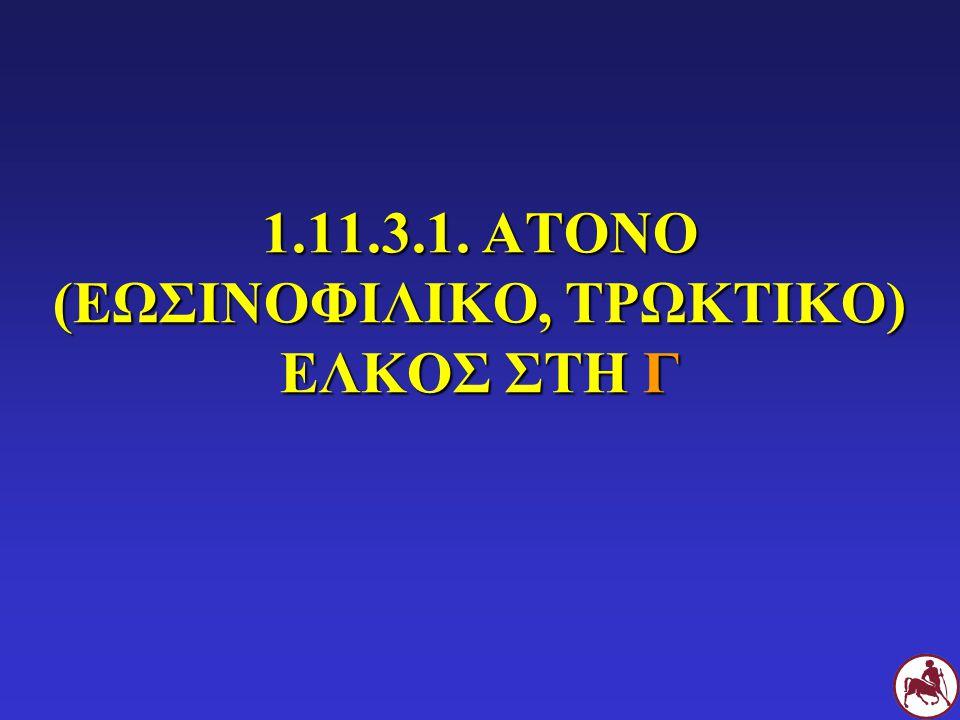 1.11.3.1. ΑΤΟΝΟ (ΕΩΣΙΝΟΦΙΛΙΚΟ, ΤΡΩΚΤΙΚΟ) ΕΛΚΟΣ ΣΤΗ Γ