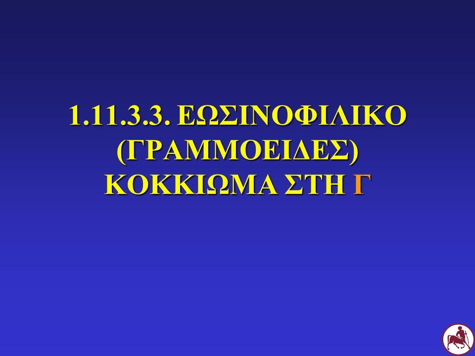 1.11.3.3. ΕΩΣΙΝΟΦΙΛΙΚΟ (ΓΡΑΜΜΟΕΙΔΕΣ) ΚΟΚΚΙΩΜΑ ΣΤΗ Γ
