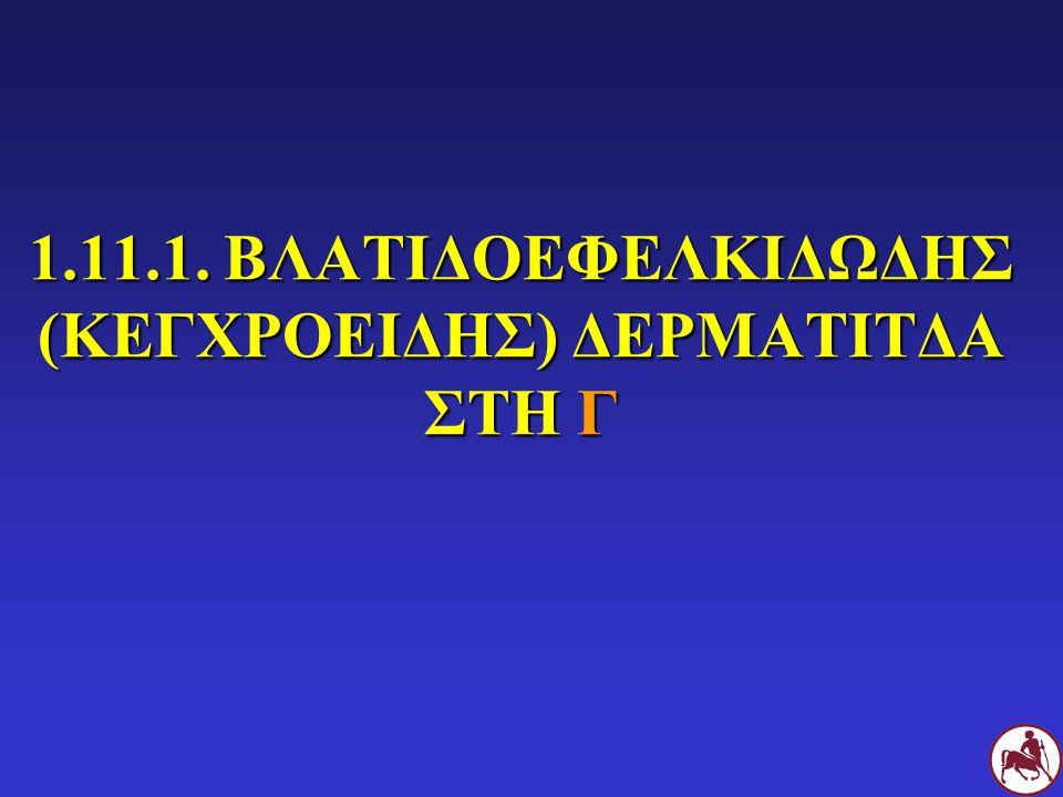 1.11.1. ΒΛΑΤΙΔΟΕΦΕΛΚΙΔΩΔΗΣ (ΚΕΓΧΡΟΕΙΔΗΣ) ΔΕΡΜΑΤΙΤΔΑ ΣΤΗ Γ