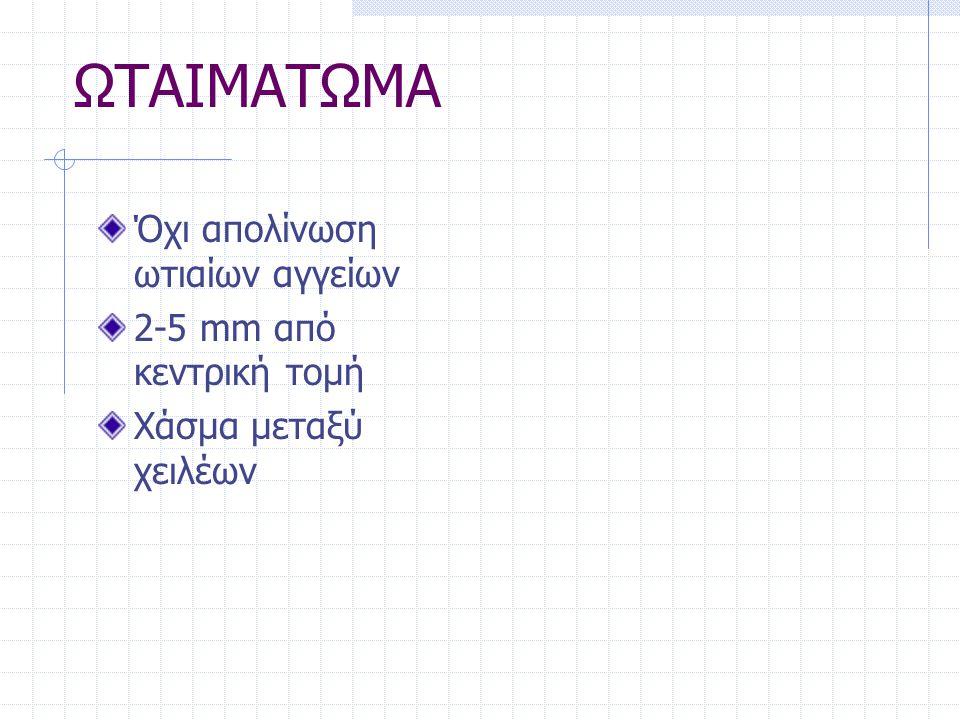 ΩΤΑΙΜΑΤΩΜΑ Όχι απολίνωση ωτιαίων αγγείων 2-5 mm από κεντρική τομή Χάσμα μεταξύ χειλέων