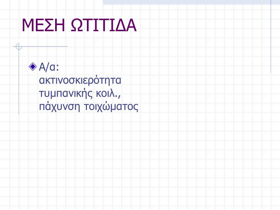 ΜΕΣΗ ΩΤΙΤΙΔΑ Α/α: ακτινοσκιερότητα τυμπανικής κοιλ., πάχυνση τοιχώματος