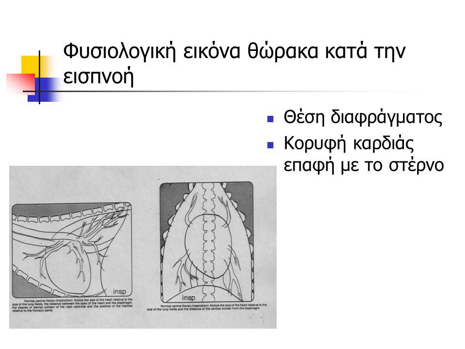 Φυσιολογική εικόνα θώρακα κατά την εισπνοή Θέση διαφράγματος Κορυφή καρδιάς επαφή με το στέρνο