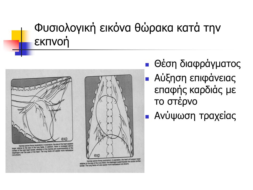 Φυσιολογική εικόνα θώρακα κατά την εκπνοή Θέση διαφράγματος Αύξηση επιφάνειας επαφής καρδιάς με το στέρνο Ανύψωση τραχείας