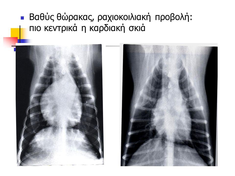 Βαθύς θώρακας, ραχιοκοιλιακή προβολή: πιο κεντρικά η καρδιακή σκιά