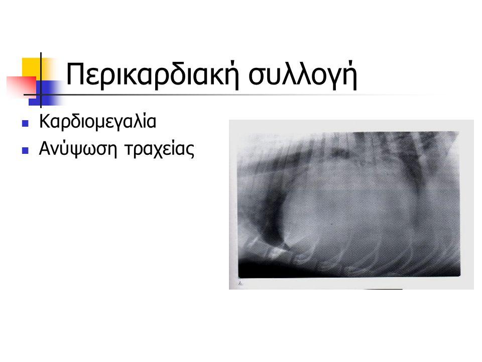 Περικαρδιακή συλλογή Καρδιομεγαλία Ανύψωση τραχείας