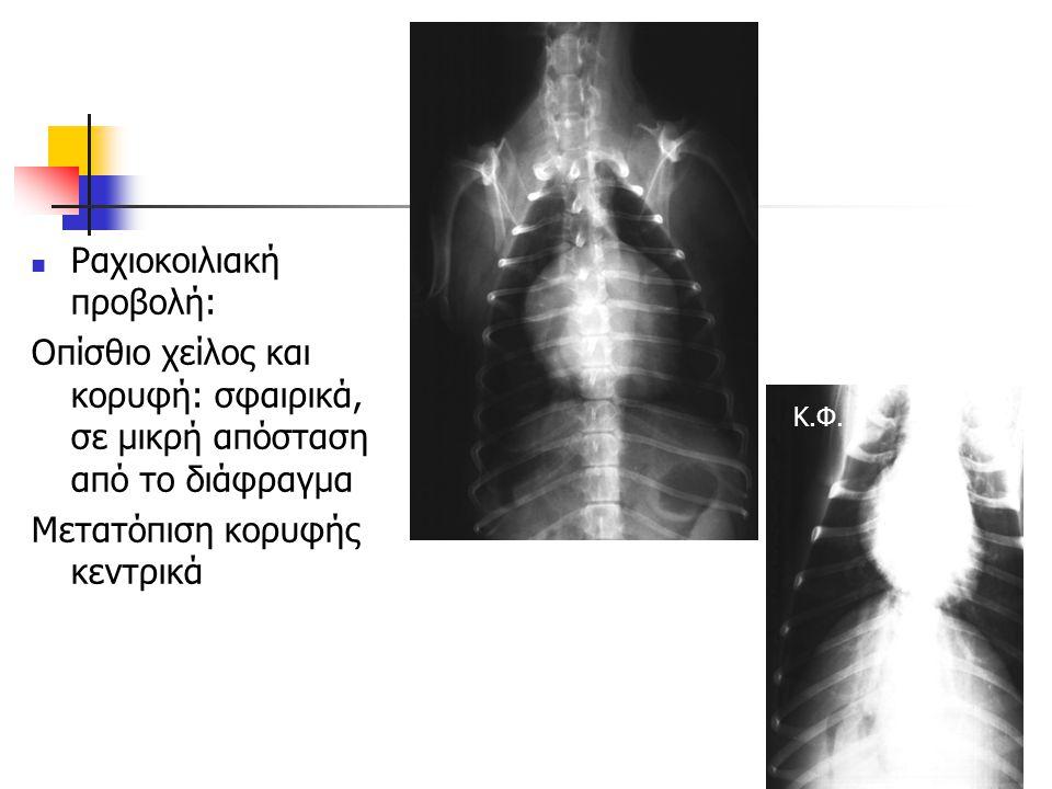 Ραχιοκοιλιακή προβολή: Οπίσθιο χείλος και κορυφή: σφαιρικά, σε μικρή απόσταση από το διάφραγμα Μετατόπιση κορυφής κεντρικά Κ.Φ.
