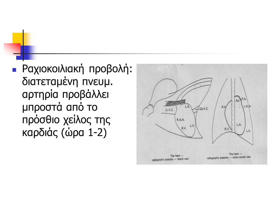 Ραχιοκοιλιακή προβολή: διατεταμένη πνευμ. αρτηρία προβάλλει μπροστά από το πρόσθιο χείλος της καρδιάς (ώρα 1-2)