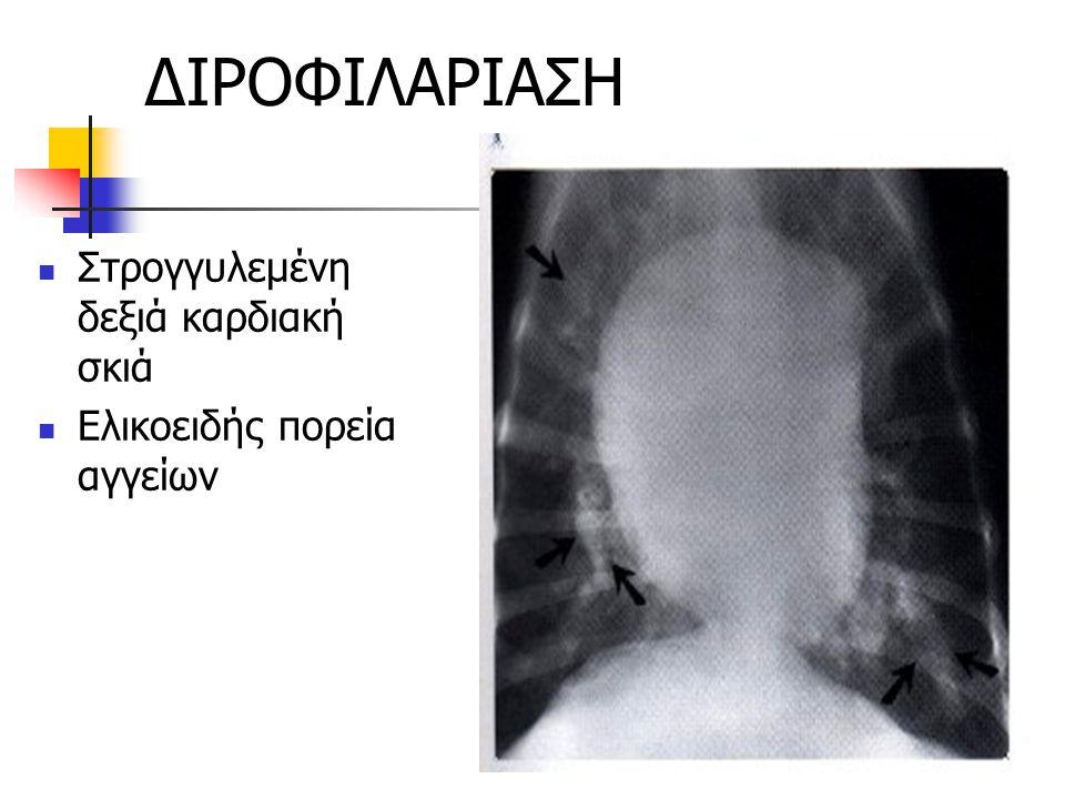 ΔΙΡΟΦΙΛΑΡΙΑΣΗ Στρογγυλεμένη δεξιά καρδιακή σκιά Ελικοειδής πορεία αγγείων