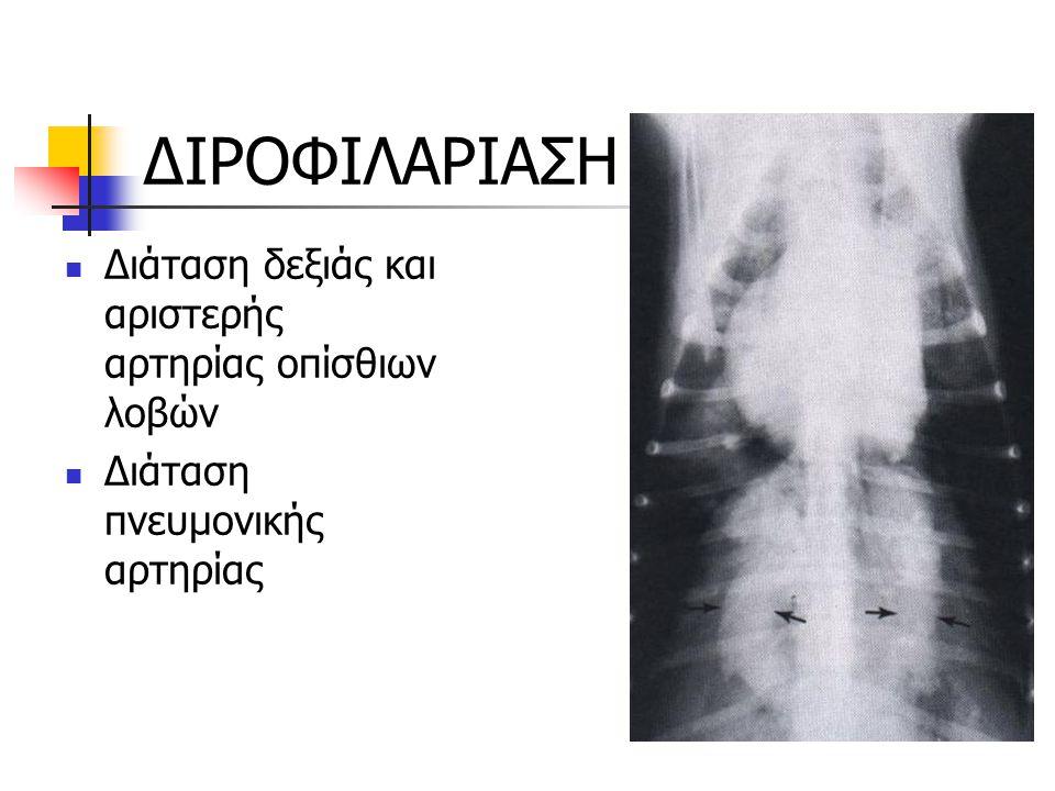 ΔΙΡΟΦΙΛΑΡΙΑΣΗ Διάταση δεξιάς και αριστερής αρτηρίας οπίσθιων λοβών Διάταση πνευμονικής αρτηρίας