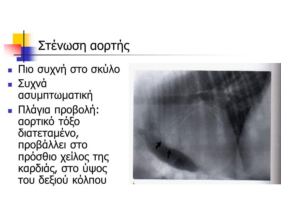 Στένωση αορτής Πιο συχνή στο σκύλο Συχνά ασυμπτωματική Πλάγια προβολή: αορτικό τόξο διατεταμένο, προβάλλει στο πρόσθιο χείλος της καρδιάς, στο ύψος το