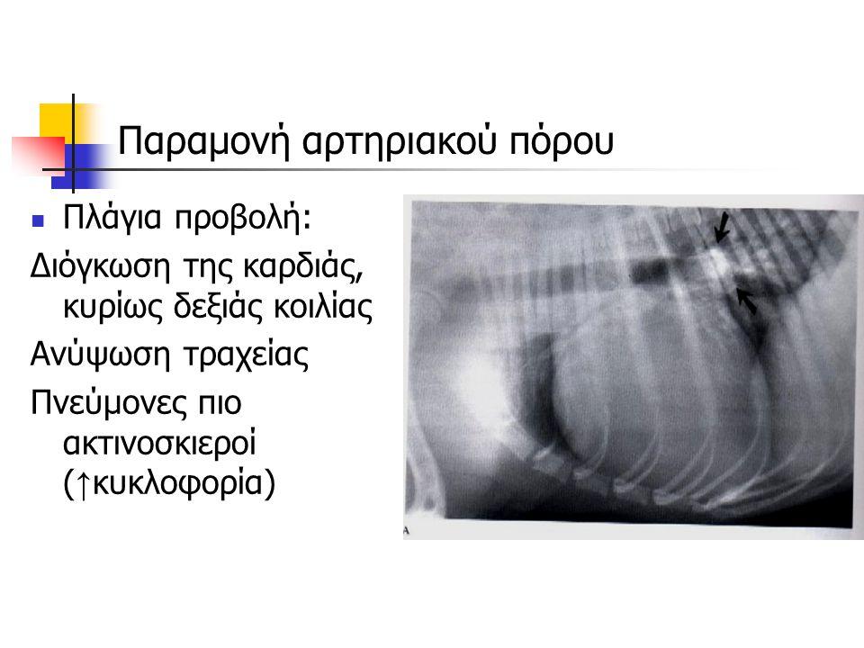 Παραμονή αρτηριακού πόρου Πλάγια προβολή: Διόγκωση της καρδιάς, κυρίως δεξιάς κοιλίας Ανύψωση τραχείας Πνεύμονες πιο ακτινοσκιεροί ( ↑ κυκλοφορία)