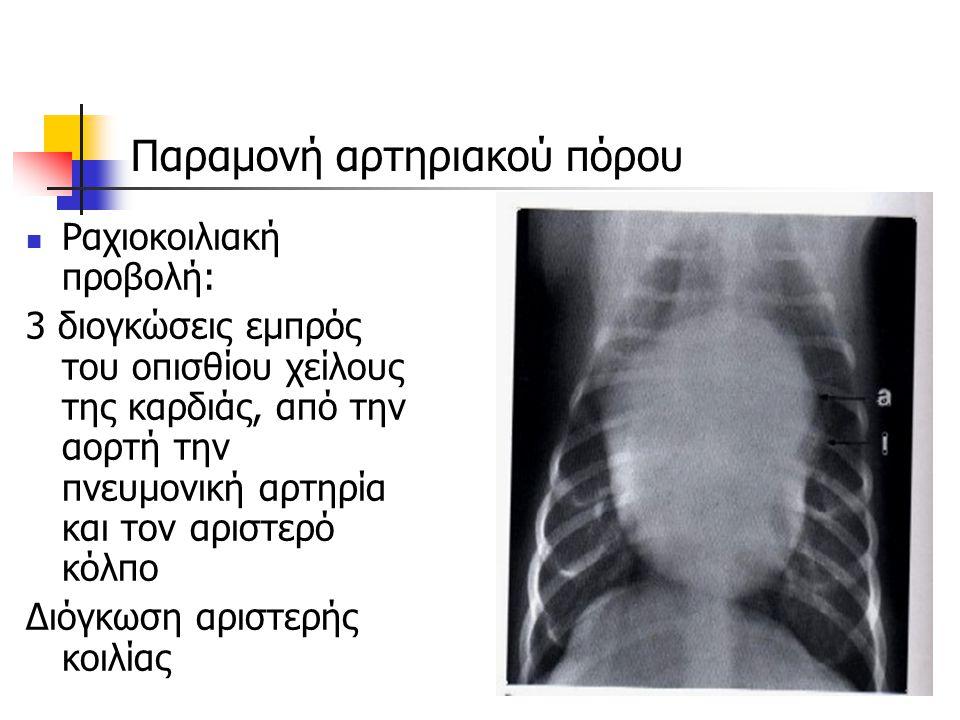 Παραμονή αρτηριακού πόρου Ραχιοκοιλιακή προβολή: 3 διογκώσεις εμπρός του οπισθίου χείλους της καρδιάς, από την αορτή την πνευμονική αρτηρία και τον αρ
