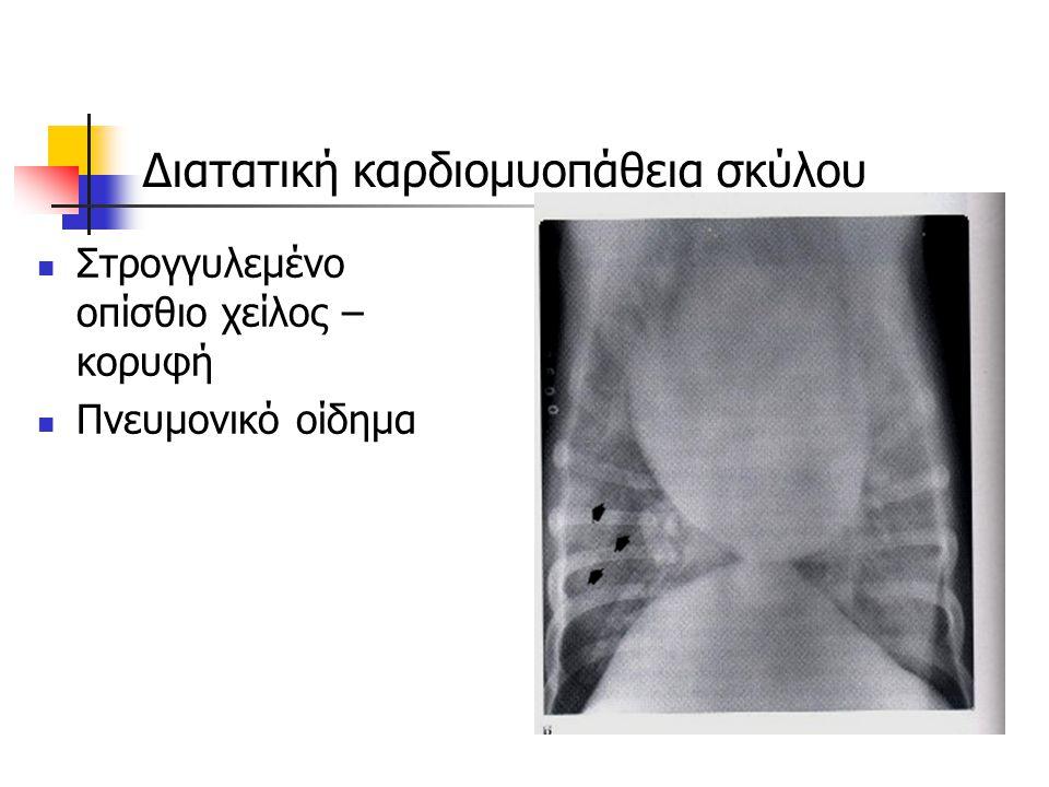 Διατατική καρδιομυοπάθεια σκύλου Στρογγυλεμένο οπίσθιο χείλος – κορυφή Πνευμονικό οίδημα