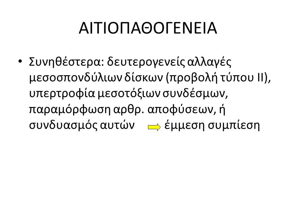 ΑΙΤΙΟΠΑΘΟΓΕΝΕΙΑ Συνηθέστερα: δευτερογενείς αλλαγές μεσοσπονδύλιων δίσκων (προβολή τύπου II), υπερτροφία μεσοτόξιων συνδέσμων, παραμόρφωση αρθρ. αποφύσ