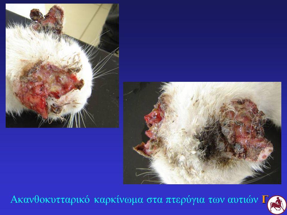 Γ Ακανθοκυτταρικό καρκίνωμα στα πτερύγια των αυτιών Γ