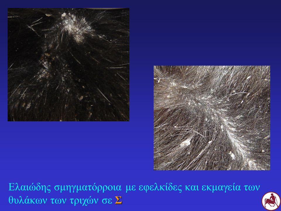 3ης επιλογής: Γλυκοκορτικοειδή Πρεδνιζολόνη: 1-2 mg/Kg SID PO σταδιακή 4ης επιλογής: Κυτταροστατικά Μεθοτρεξάτη, αζαθειοπρίνη, κυκλοσπορίνη .