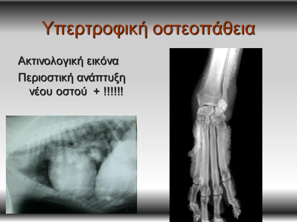 Υπερτροφική οστεοπάθεια Ακτινολογική εικόνα Περιοστική ανάπτυξη νέου οστού + !!!!!!