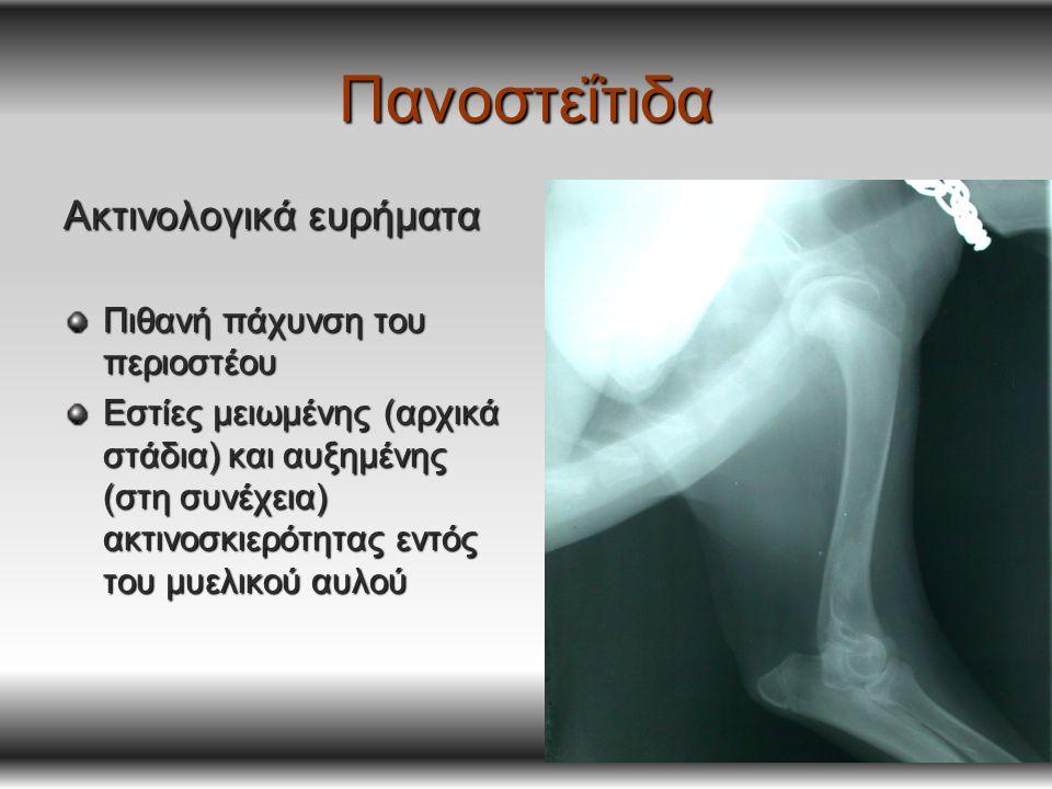 Πανοστεΐτιδα Ακτινολογικά ευρήματα Πιθανή πάχυνση του περιοστέου Εστίες μειωμένης (αρχικά στάδια) και αυξημένης (στη συνέχεια) ακτινοσκιερότητας εντός του μυελικού αυλού