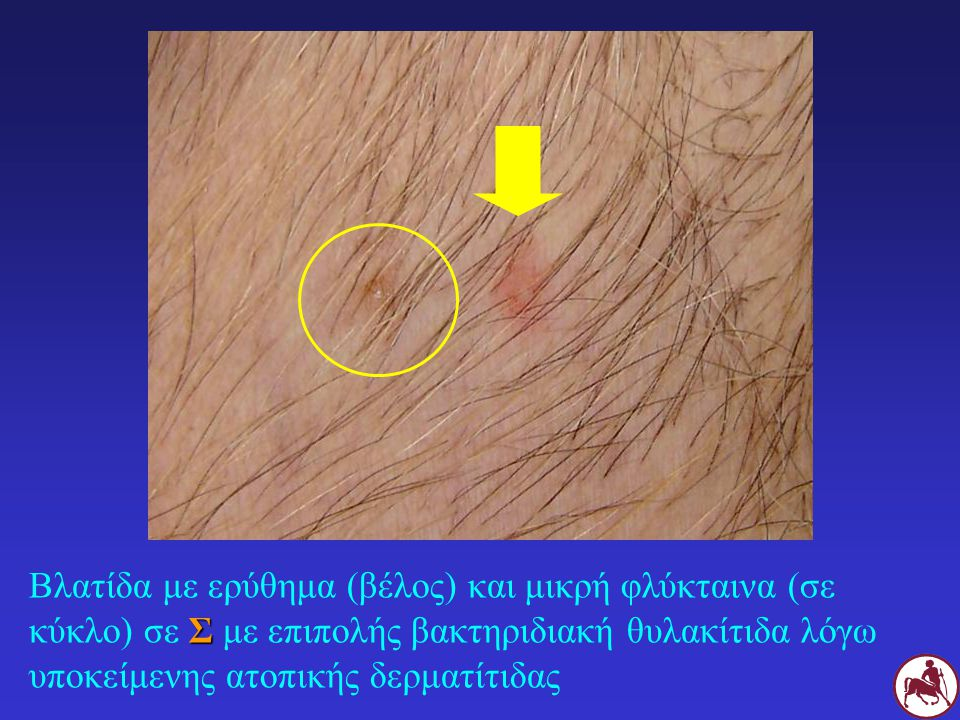 Σ Βλατίδα με ερύθημα (βέλος) και μικρή φλύκταινα (σε κύκλο) σε Σ με επιπολής βακτηριδιακή θυλακίτιδα λόγω υποκείμενης ατοπικής δερματίτιδας