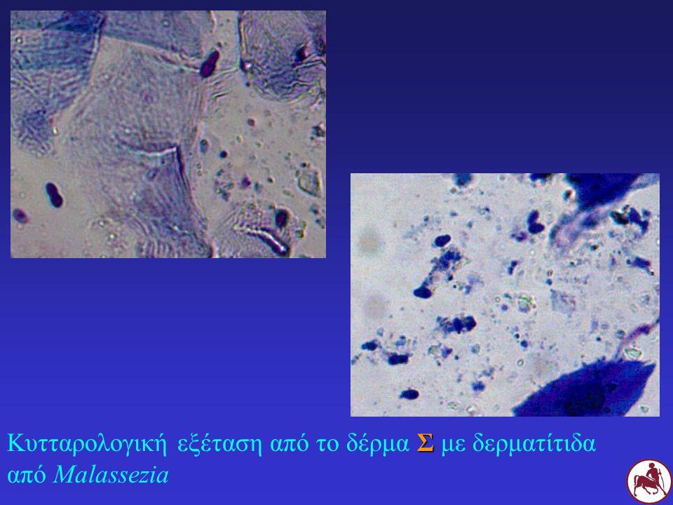 Σ Κυτταρολογική εξέταση από το δέρμα Σ με δερματίτιδα από Malassezia