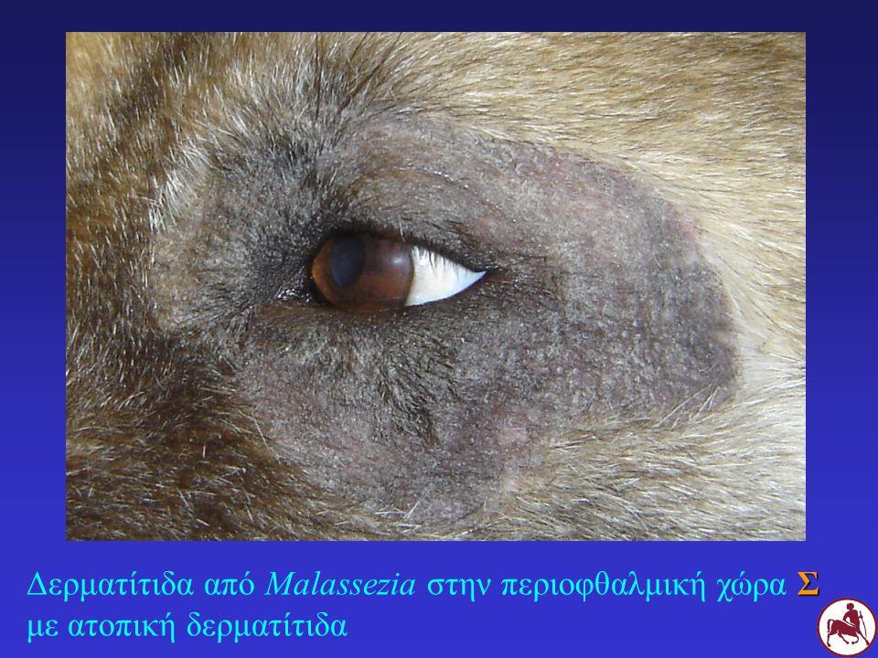 Σ Δερματίτιδα από Malassezia στα μεσοδακτύλια διαστήματα Σ με αλλεργική δερματίτιδα
