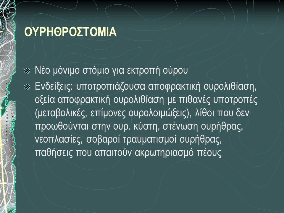 ΟΥΡΗΘΡΟΣΤΟΜΙΑ Νέο μόνιμο στόμιο για εκτροπή ούρου Ενδείξεις: υποτροπιάζουσα αποφρακτική ουρολιθίαση, οξεία αποφρακτική ουρολιθίαση με πιθανές υποτροπές (μεταβολικές, επίμονες ουρολοιμώξεις), λίθοι που δεν προωθούνται στην ουρ.