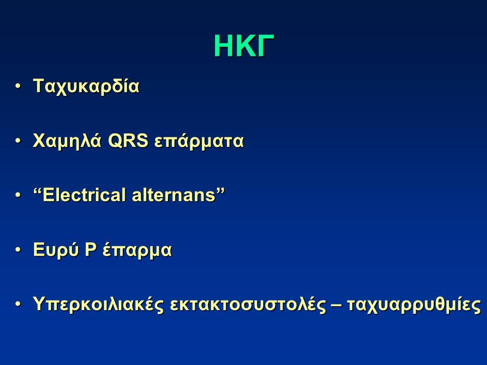 ΗΚΓ ΤαχυκαρδίαΤαχυκαρδία Χαμηλά QRS επάρματαΧαμηλά QRS επάρματα Electrical alternans Electrical alternans Ευρύ P έπαρμαΕυρύ P έπαρμα Υπερκοιλιακές εκτακτοσυστολές – ταχυαρρυθμίεςΥπερκοιλιακές εκτακτοσυστολές – ταχυαρρυθμίες