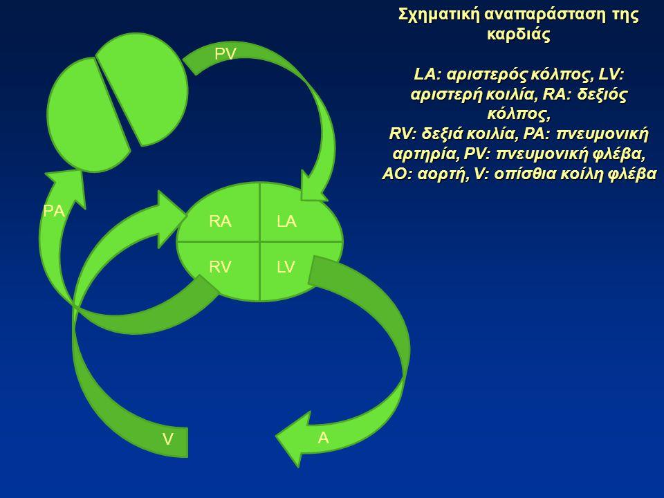 RALA LVRV Σχηματική αναπαράσταση της καρδιάς LA: αριστερός κόλπος, LV: αριστερή κοιλία, RA: δεξιός κόλπος, RV: δεξιά κοιλία, PA: πνευμονική αρτηρία, ΡV: πνευμονική φλέβα, AO: αορτή, V: οπίσθια κοίλη φλέβα ΡAΡA ΡVΡV A V
