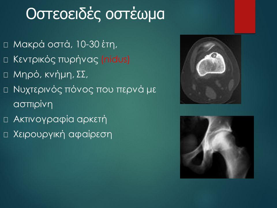 Οστεοειδές οστέωμα  Μακρά οστά, 10-30 έτη,  Κεντρικός πυρήνας (nidus)  Μηρό, κνήμη, ΣΣ,  Νυχτερινός πόνος που περνά με ασπιρίνη  Ακτινογραφία αρκ